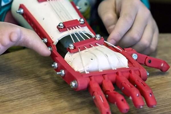 prothèse bionique imprimée en 3D